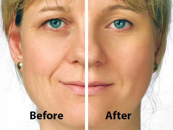 Eyelid Surgery | Riemer Eye Center